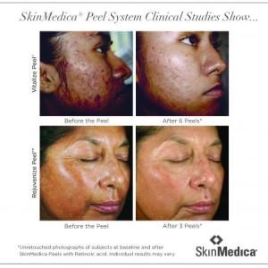SkinMedica_Peels_02072012[1]